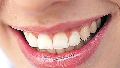 teeth-386x220